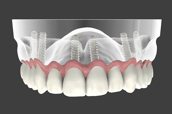 Implant Supported Dentures - Patient Smile