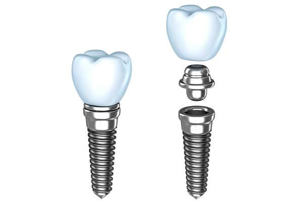 Implants Graphic Illustration